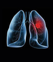 Common Lung Diseases in The World